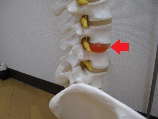 腰椎椎間板ヘルニア模型