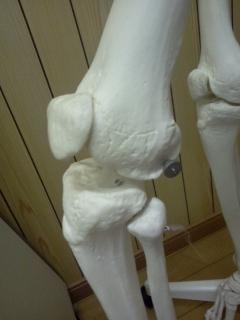膝関節、外側