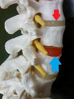 骨格模型、椎間板ヘルニア矢印