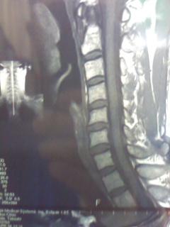 MRI核磁気共鳴画像法 首ヘルニア