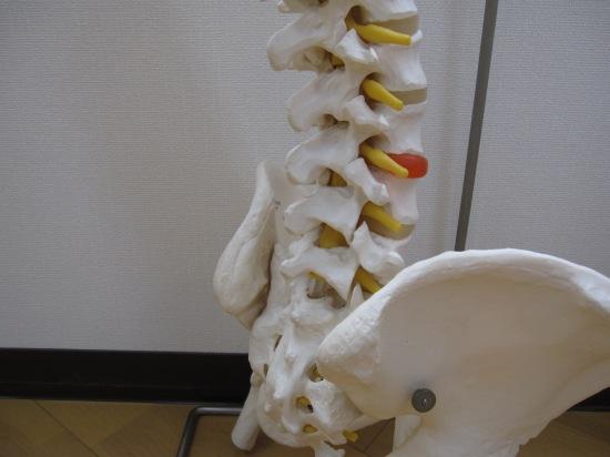 腰椎、腰反り、骨盤