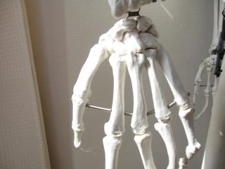 手首痛,腱鞘炎,フィンケルシュタインテスト
