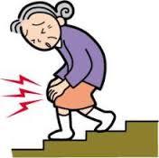 膝痛、階段辛い、関節変形