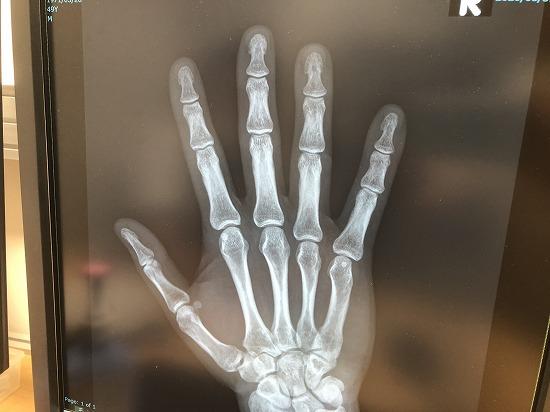 レントゲン、画像診断、手、骨折、検査